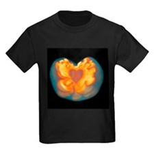 Supernova explosion - Kid's Dark T-Shirt