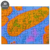 Acinetobacter Puzzles