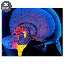 Medulla oblongata in the brain, artwork - Puzzle
