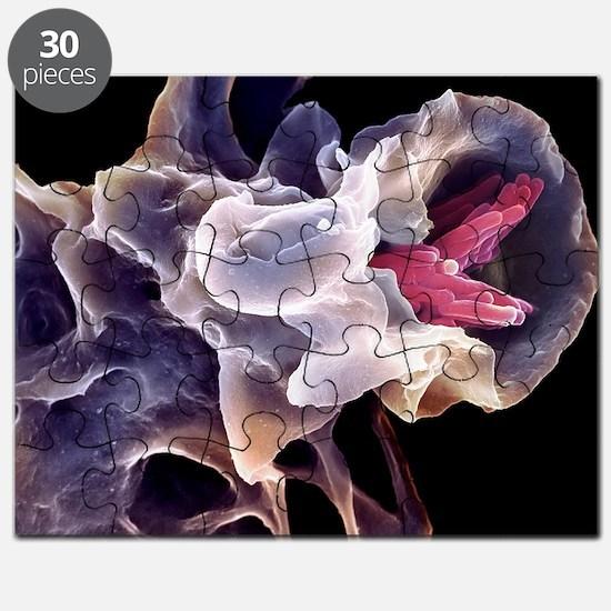 Macrophage engulfing TB bacteria, SEM - Puzzle