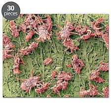 Dust mites, SEM - Puzzle
