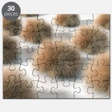 Fungal skin infection, artwork - Puzzle