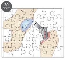 Hip replacement, artwork - Puzzle