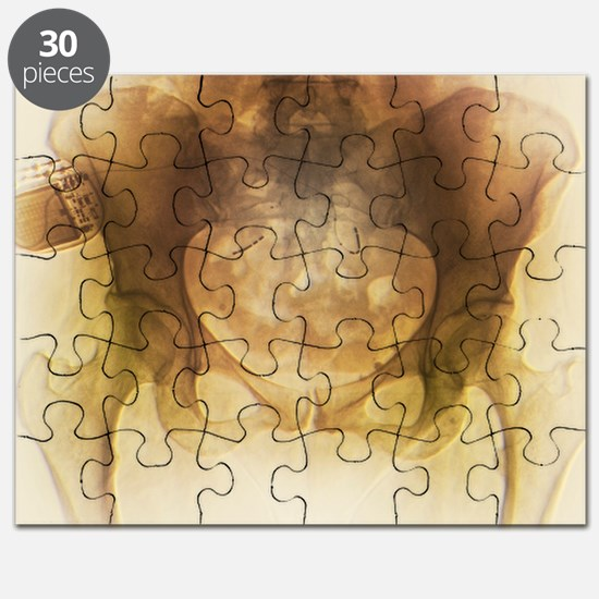 Incontinence implant, X-ray - Puzzle