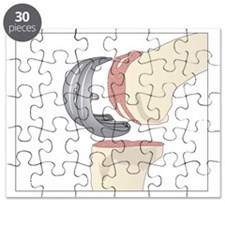 Knee replacement, artwork - Puzzle