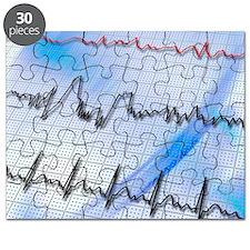 Irregular heartbeat - Puzzle