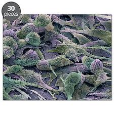 Ovarian cancer cells, SEM - Puzzle