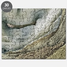 Polycystic kidney disease - Puzzle