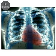 Healthy heart and lungs, X-ray - Puzzle