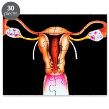 Female reproductive organs - Puzzle