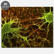 Nerve cell growth - Puzzle