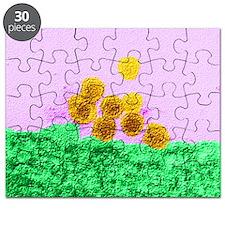 West Nile virus, TEM - Puzzle