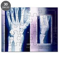 Wrist bones, X-ray - Puzzle
