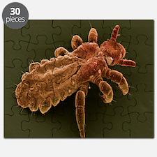 Head louse, SEM - Puzzle