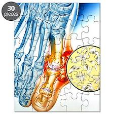 Gout - Puzzle