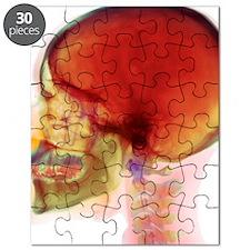 Overbite, X-ray - Puzzle