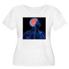 Headache, conceptual artwork - T-Shirt