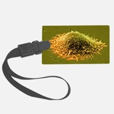 Prostate cancer cell, SEM - Luggage Tag