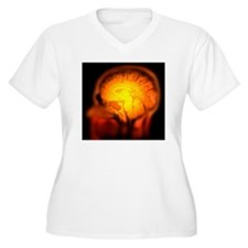 Brain anatomy, MRI scan - T-Shirt