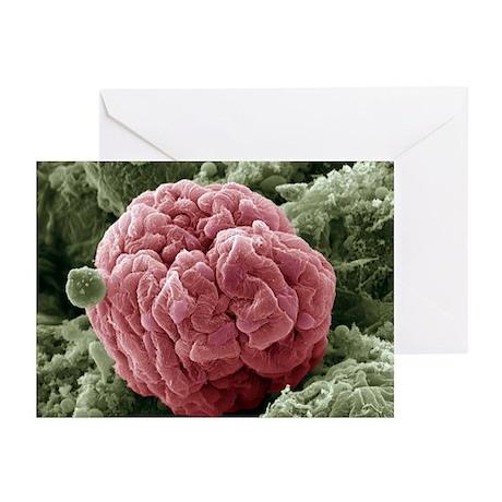 Kidney glomerulus, SEM - Greeting Cards (Pk of 20)