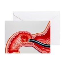 Artwork of duodenal ulcer - Greeting Cards (Pk of