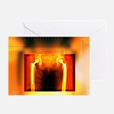 Double hip replacement, X-ray - Greeting Cards (Pk