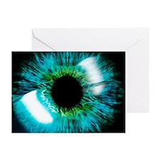 Eye - Greeting Cards (Pk of 20)