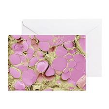Thyroid gland, SEM - Greeting Card