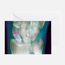 Broken wrist, X-ray - Greeting Card