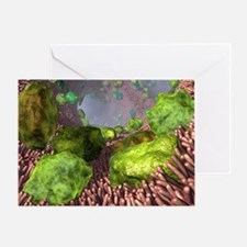 Asthma, artwork - Greeting Card