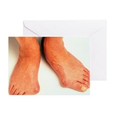 Bunions - Greeting Card