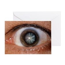 Close-up of eye showing cataract - Greeting Card