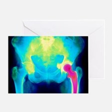 Coloured X-ray of an artificial hip joint - Greeti