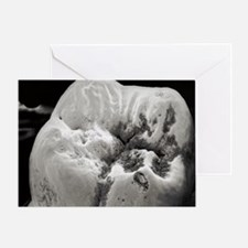 Decay on molar tooth, SEM - Greeting Card