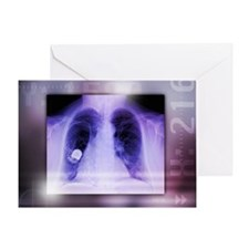 Heart pacemaker, X-ray - Greeting Card