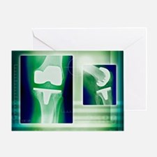 Knee replacement, X-rays - Greeting Card