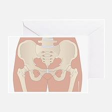 Osteoarthritis of the hips, artwork - Greeting Car