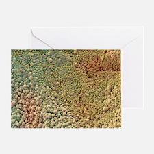 Ovarian cyst, SEM - Greeting Card