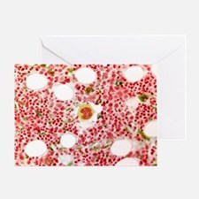 Bone marrow, light micrograph - Greeting Card