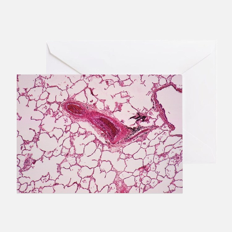 Lung alveoli - Greeting Card