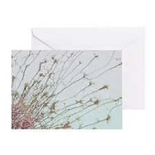 Nerve cell culture, SEM - Greeting Card