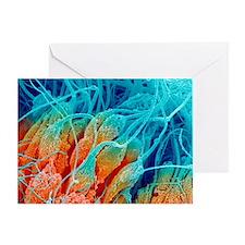 Sperm production, SEM - Greeting Card