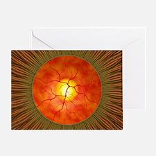 Retina in glaucoma, artwork - Greeting Card