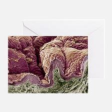 Skin tissue, SEM - Greeting Card