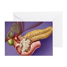 Pancreatic cancer, artwork - Greeting Card