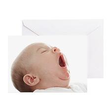 Baby yawning - Greeting Cards (Pk of 10)