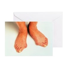 Bunions - Greeting Cards (Pk of 10)