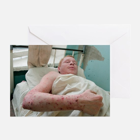 Eczema skin condition - Greeting Cards (Pk of 10)