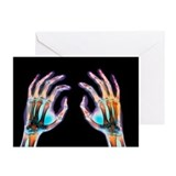 Xray hands Greeting Cards (10 Pack)