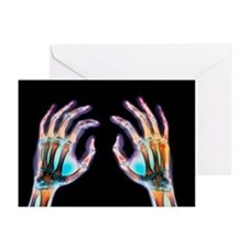 Coloured X-ray of healthy human hands - Greeting C